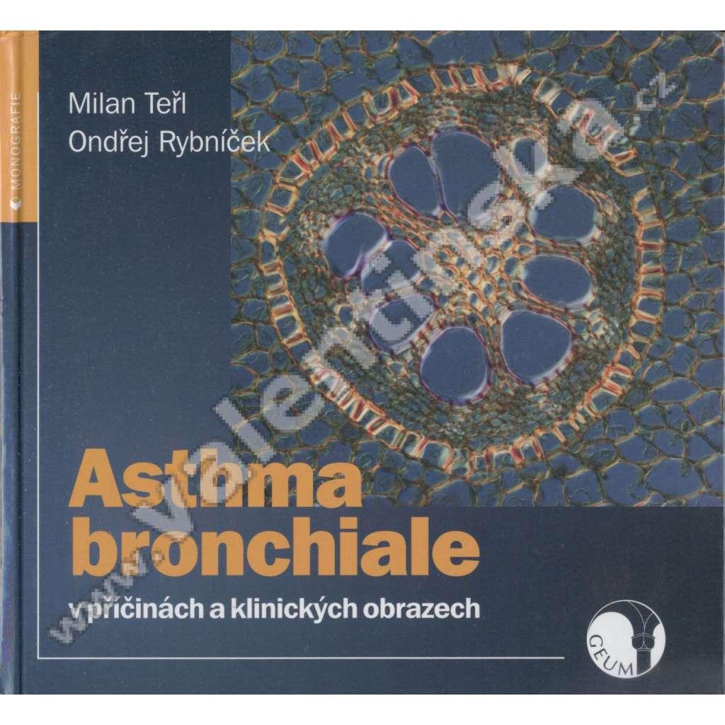 Asthma bronchiale v příčinách a klinických ...