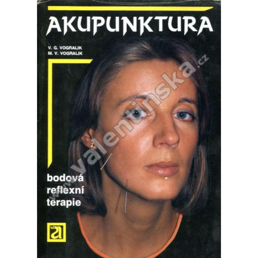 Akupunktura. Bodová reflexní terapie