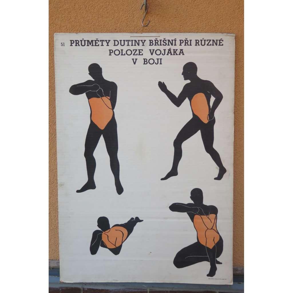 Přůměty dutiny břišní při různé poloze vojáka v boji - školní plakát